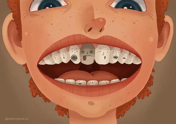 Bí ẩn giấc mơ thấy răng bị lung lay