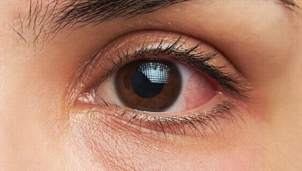 Để giữ cho mắt được hoạt động tốt nhất, mắt không bị khô thì bạn nên cung cấp đầy đủ nước cho cơ thể