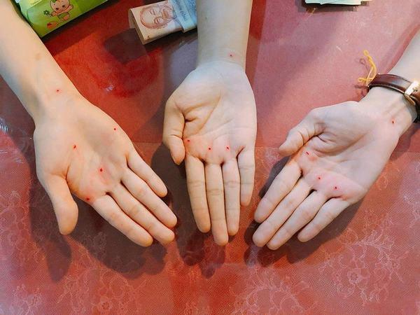 Nốt ruồi son trong lòng bàn tay