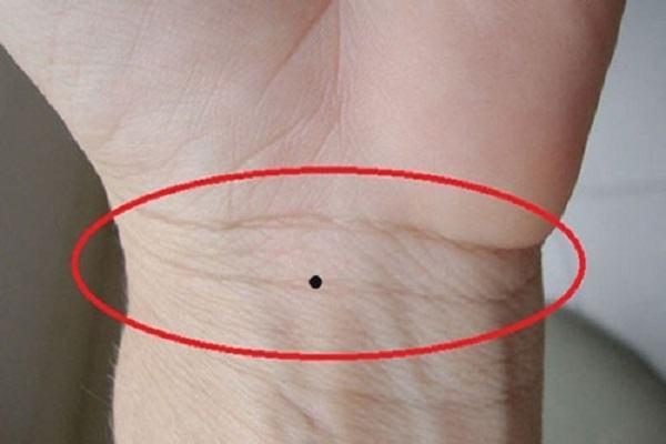 Xem nốt ruồi trong lòng bàn tay tại vị trí vòng cổ tay