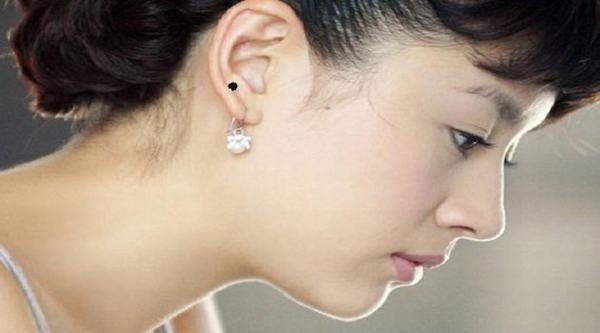 Xem bói vị trí nốt ruồi ở tai phụ nữ nói lên điều gì?