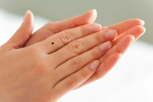 Nốt ruồi ở ngón tay trỏ